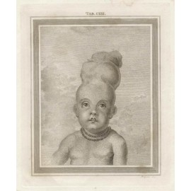 Child skull deformed Basire Bell medical engraving