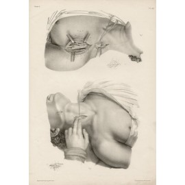 Anatomy medical Bougery French lithograph cut