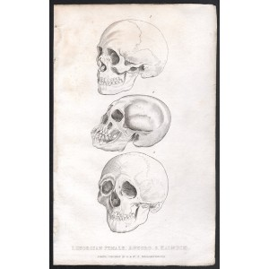 1 Georgian Female 2 Negro 3 Kalmuck (Skulls)